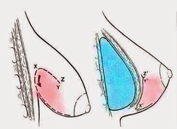 Mama Tuberosa - operación