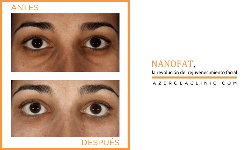 NANOFAT | La revolución del rejuvenecimiento facial