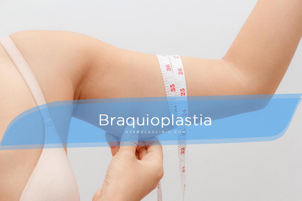 BRAQUIOPLASTIA | Cirugía de los brazos