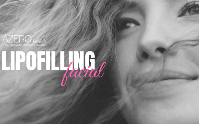 Lipofilling facial, rellenos de tu propio tejido natural